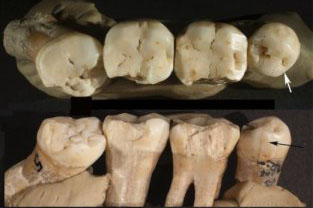 Models of damaged and decayed teeth