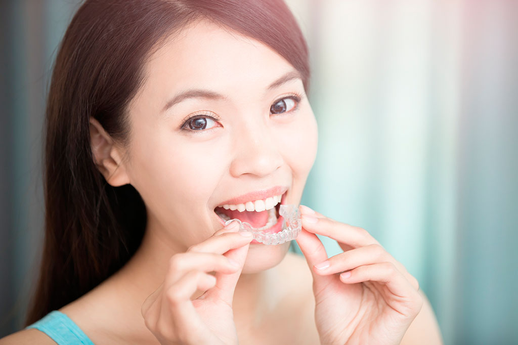 Young woman putting in her Invisalign aligners